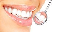 SPECIAL OFFER - LASER TEETH WHITENING