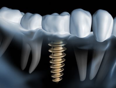 Implant package - Dental clinic Smile