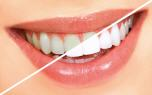 Package Whitening - Dental clinic Smile